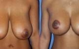 breast-reduction-17