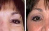 forehead-lift-9