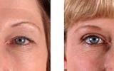eyelid-surgery-3