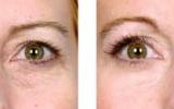 eyelid-surgery-5