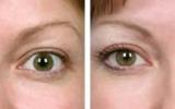 eyelid-surgery-9