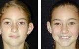 ear-surgery-7
