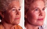 face-lift-chemical-peeling