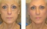 face-lift4