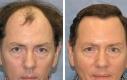 hairtransplant-4