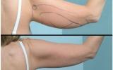 laser-liposuction-arm-behind