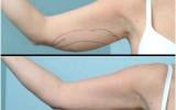 laser-liposuction-arm-front