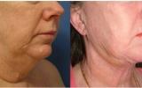 laser-liposuction-chin-neck