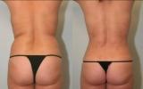 laser-liposuction-tummy-waist3