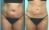 laser-liposuction-tummy3