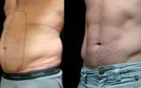 smartlipo-male-tummy