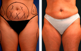 smartlipo-tummy-hips