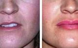lip-augmentation-10