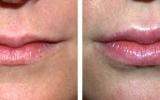 lip-augmentation-6