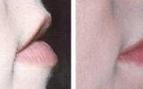 lip-augmentation-8