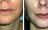lip-augmentation-9