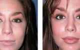 lip-enhancement-2