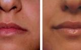lip-enhancement-5