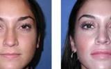 lip-enlargement-1