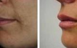 lip-enlargement-14