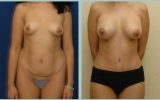 bodyjet-fat-transplant-breast