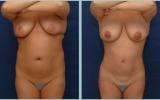 bodyjet-fat-transplant