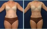 bodyjet-tummy-hips-thigh