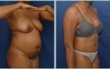 bodyjet-tummy-hips