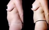 bodytite-tummy-bum-waist2