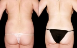 bodytite-tummy-bum-waist3