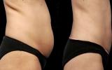 bodytite-tummy