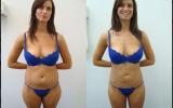 liposuction-tummy-bum-waist-thigh-back