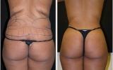 liposuction-waist-behind