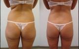 tummy-bum-waist-thigh-back