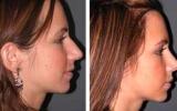 nose-surgery-10