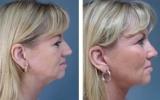 nose-surgery-12