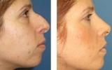 nose-surgery-14