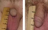 penile-enlargement2