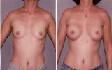 round-silicon-implants-behind-muscle
