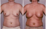 round-silicone-implants-behind-muscle