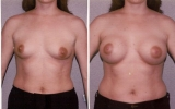 round-silicone-implants-behind-muscle2