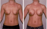 round-silicone-implants-high-profile