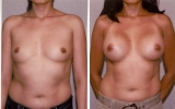 round-silicone-implants-submuscular