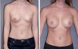 round-silicone-implants-submuscular2