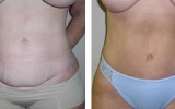 abdominoplasty-12