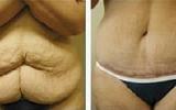 abdominoplasty-3
