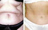 abdominoplasty-5