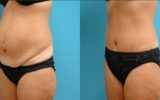 full-tummytuck-side