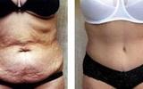 tummy-surgery-21