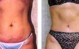 tummy-surgery-22